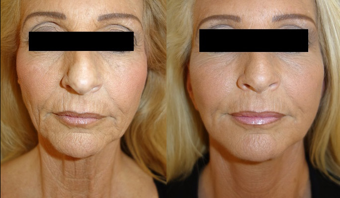 Facelift Case Study 70