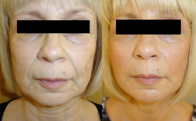 Facelift Case Study 71