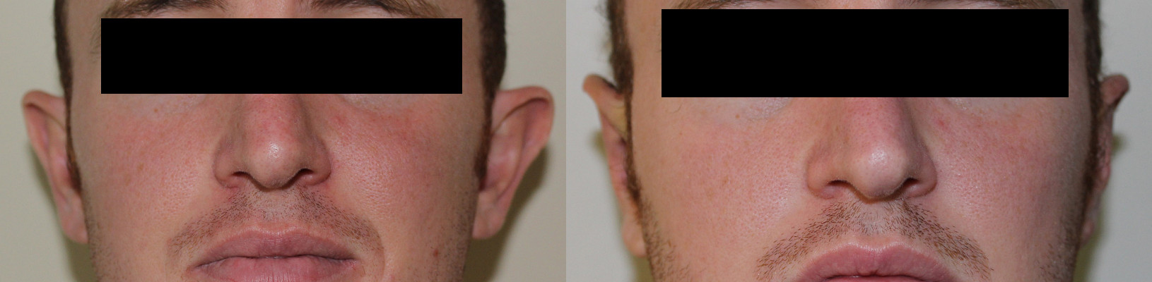 Ear Correction Case Study 31