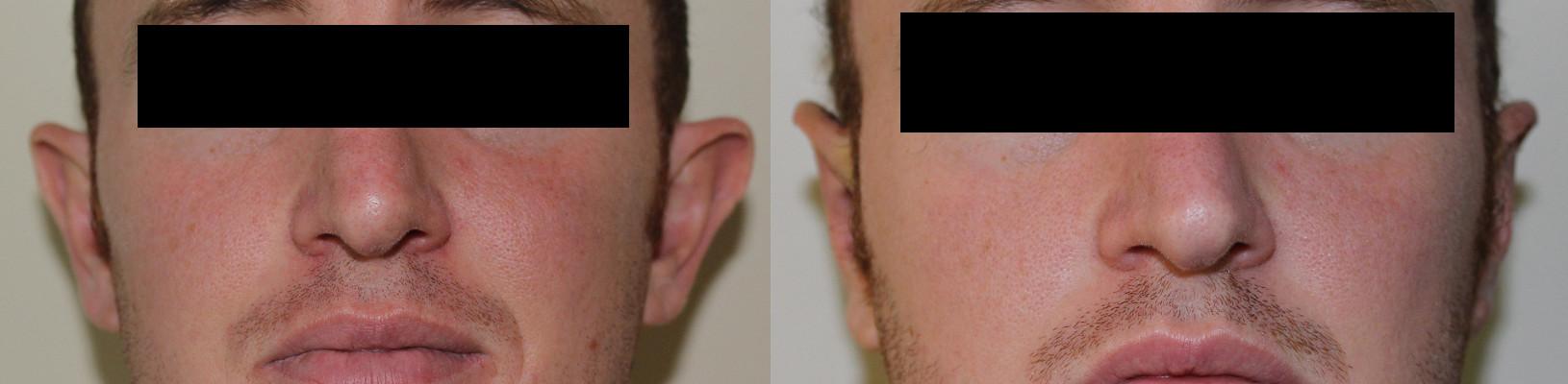 Ear Correction Case Study 31