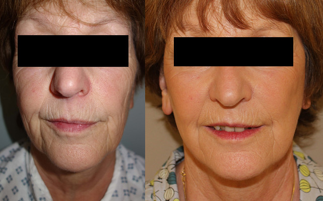 Facelift Case Study 73