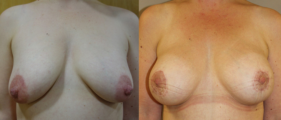 Mastopexy Implant Case Study 40