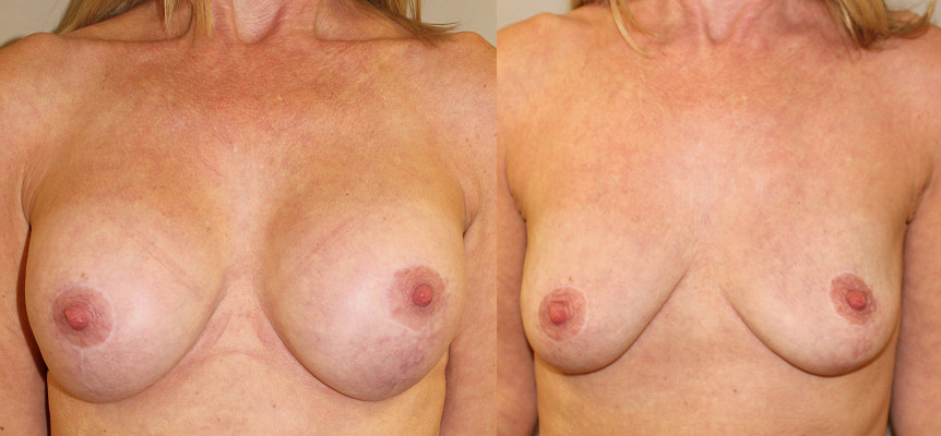 Breast Augmentation Removal Case Study 16