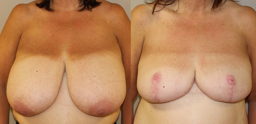 Breast Reduction Case Study 36