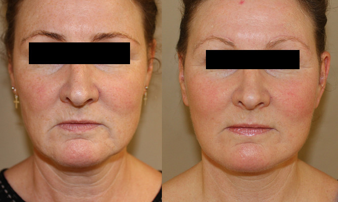 Facelift Case Study 74