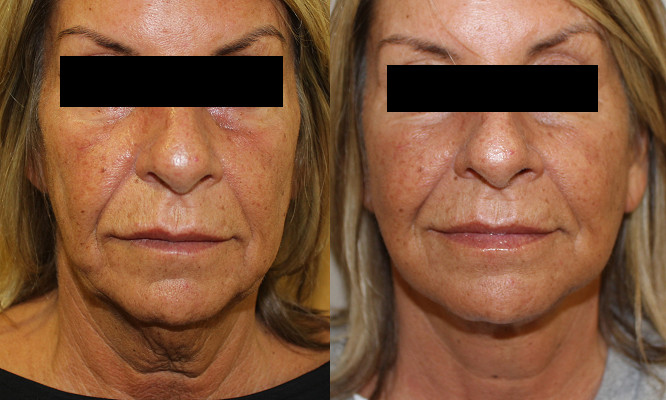 Facelift Case Study 75