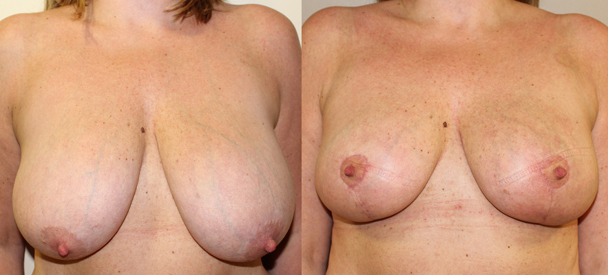 Breast Reduction Case Study 37