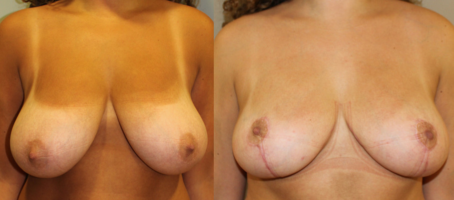 Breast Reduction Case Study 39