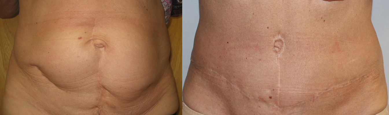 Abdominoplasty Case Study 76