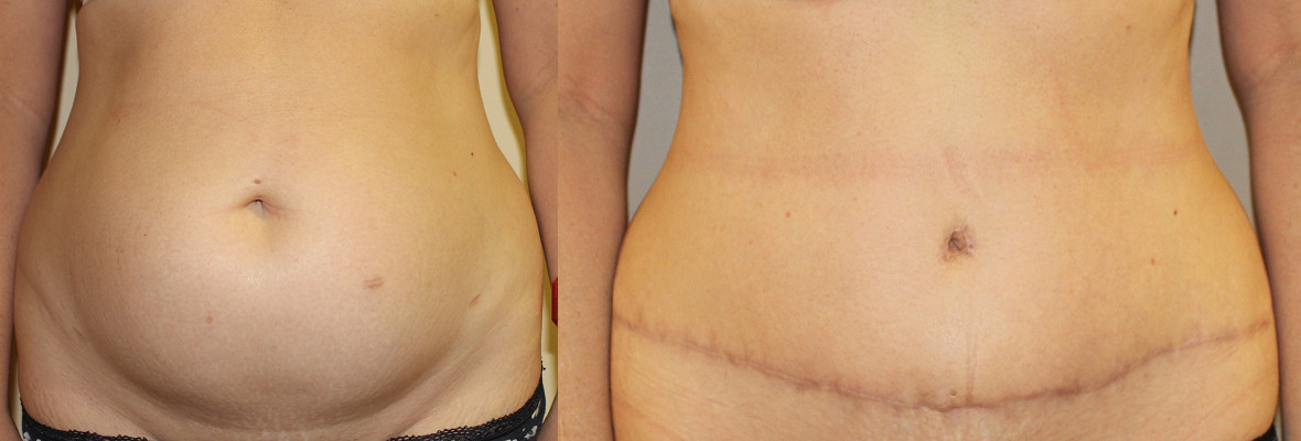 Abdominoplasty Case Study 78