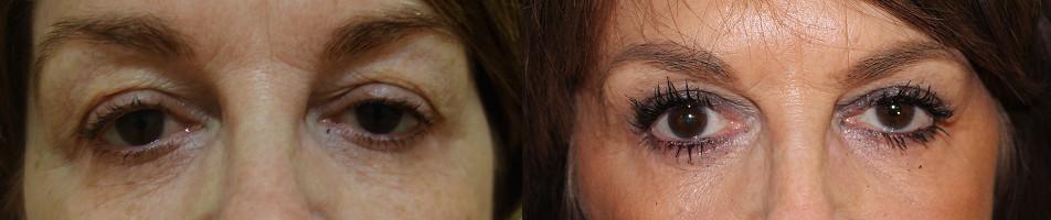 Eyelid Rejuvenation Case Study 73