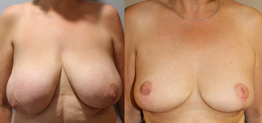 Breast Reduction Case Study 41