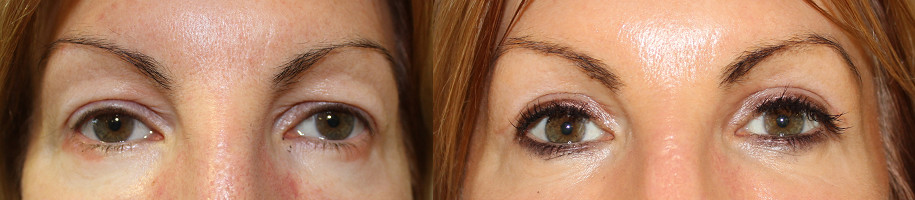 Eyelid Rejuvenation Case Study 76