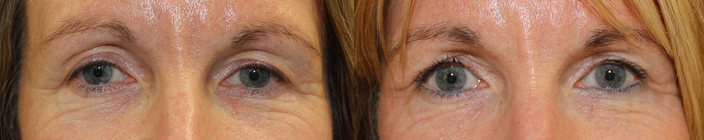 Eyelid Rejuvenation Case Study 77