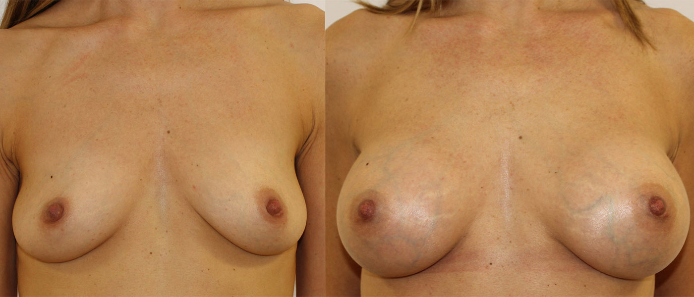 Breast Augmentation Case Study 1