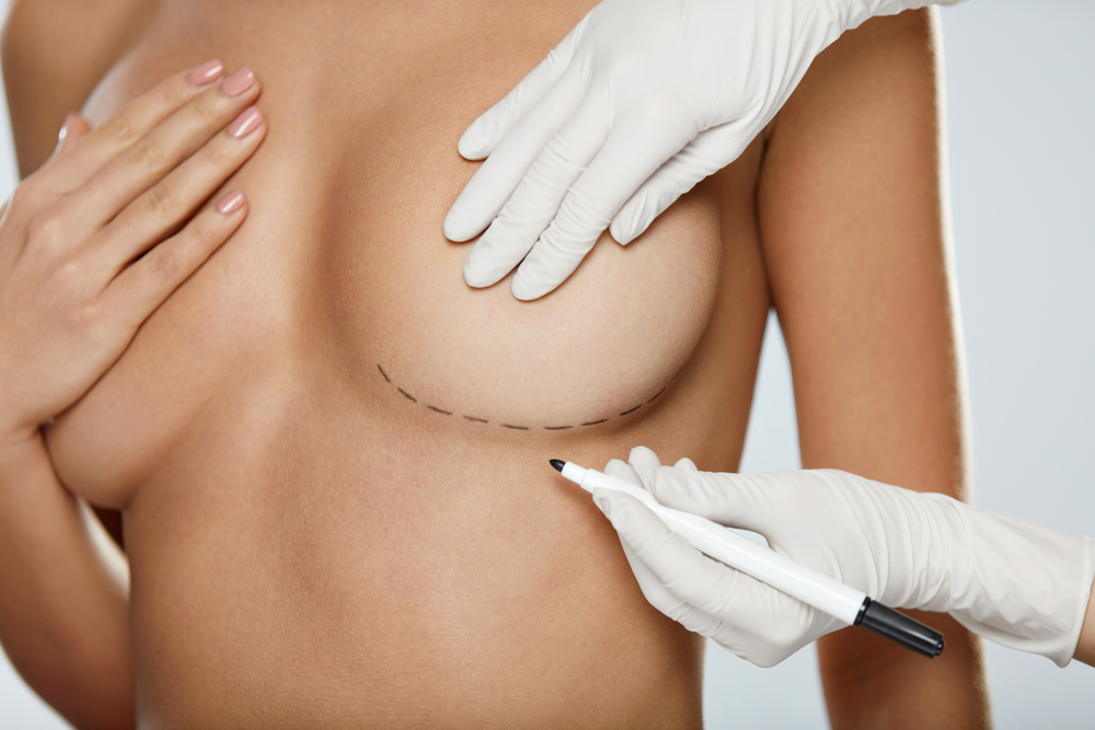 Surgeon drawing lines for breast implant