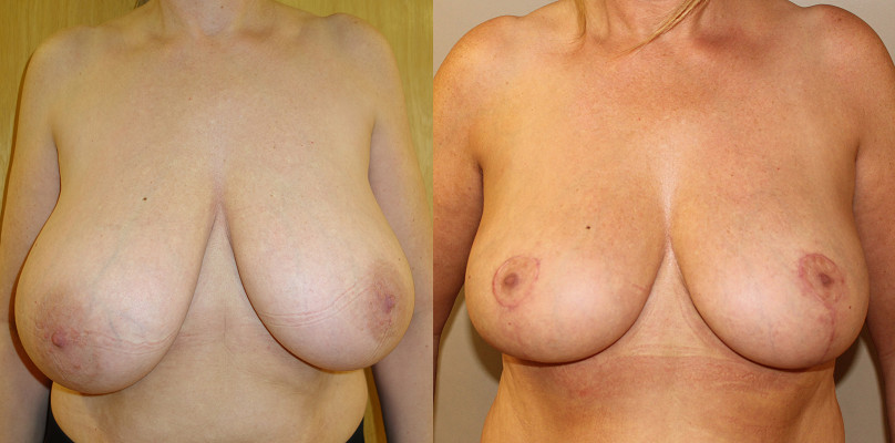Breast Reduction Case Study 32
