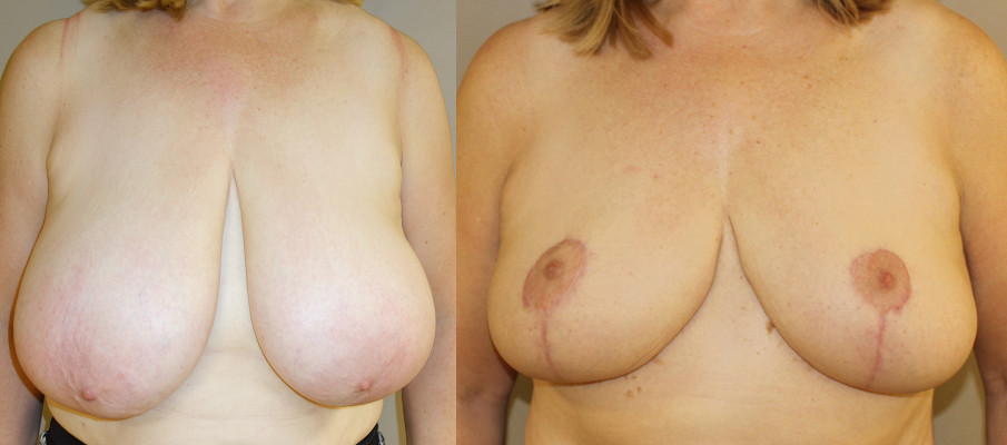 Breast Reduction Case Study 40