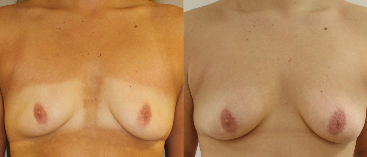 before and after comparison image of patient after autologous fat transfer surgery