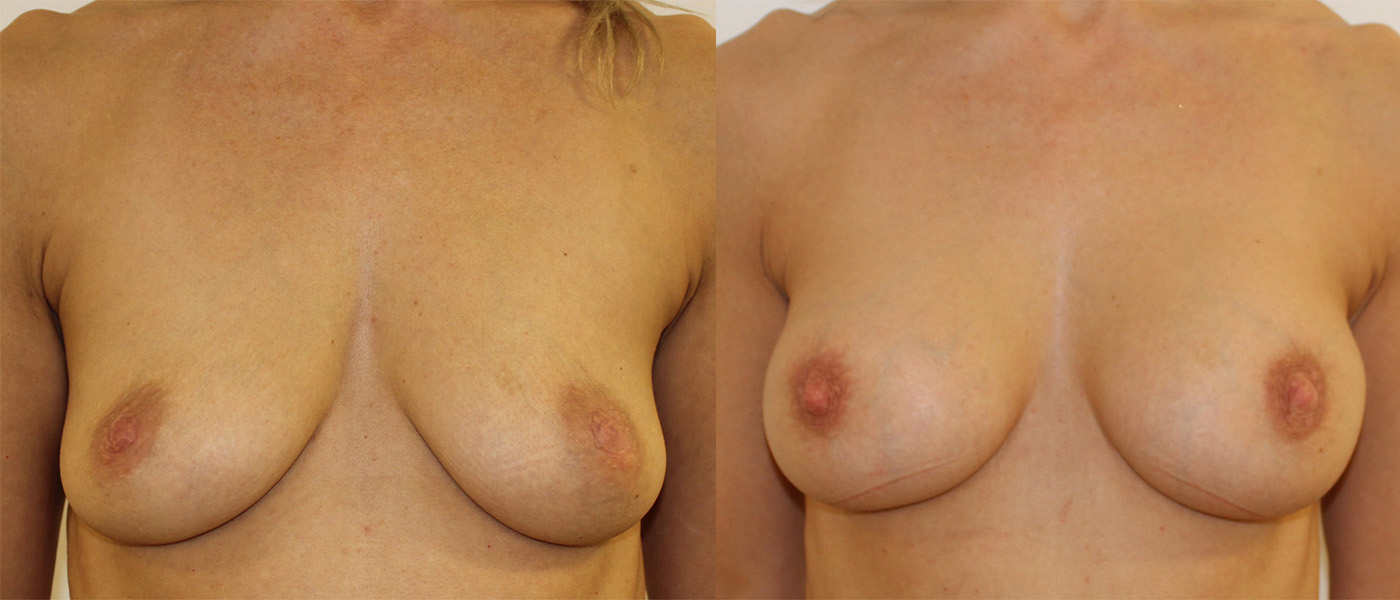 before and after comparison image of patient after breast augmentation surgery