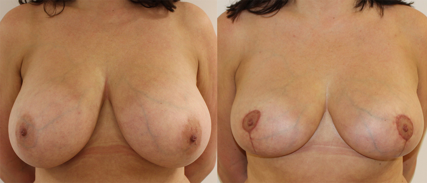 before and after image showing results of patients' breasts after breast reduction surgery